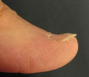 Заболевания ногтей
