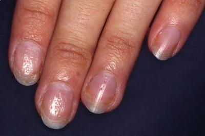 Особенности и причины псориаза на ногтях